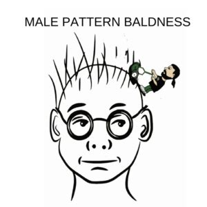 pattern baldness meaning male pattern baldness androgenic alopecia and treatment