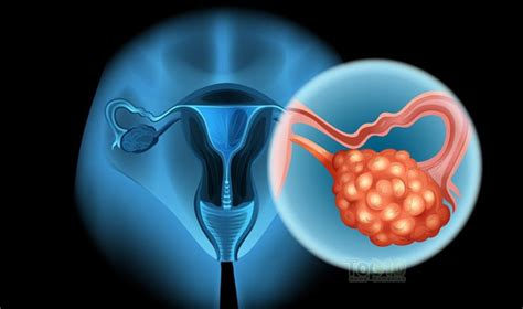 early warning signs  ovarian cancer  woman
