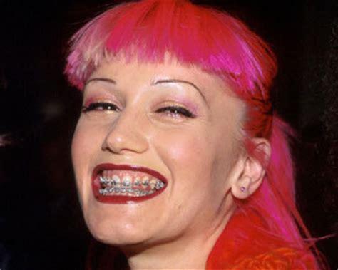 Biaya Pemutihan Gigi Jogja hati hati akibat fatal sembarangan pasang behel klinik gigi dental yogyakarta