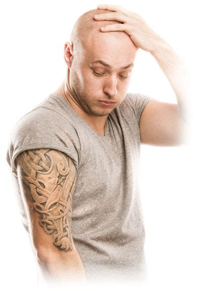 fort worth tattoo removal removal dr obstetrics gynecology