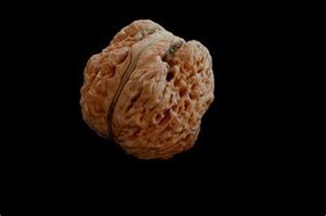 test di tutti i tipi preparazione di tutti i tipi di vermi negli esseri umani