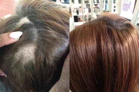 sew in extensions hair how on patchy scalp 61 best images about hair loss on pinterest male pattern