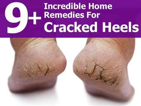 best 25 cracked heel remedies ideas on