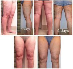 Cellulite 101 Definition And Cause by 717 Likes 101 Comments Black Guru
