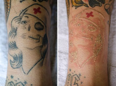 infected laser tattoo removal think before you ink shout geelong