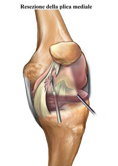 ginocchio dolore interno laterale dolore al ginocchio interno esterno laterale cause