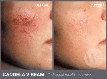 led light skin cancer photodynamic therapy pdt washington dc and chevy md