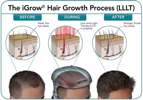laser light therapy for hair loss reviews igrow laser hair restoration reviews om hair