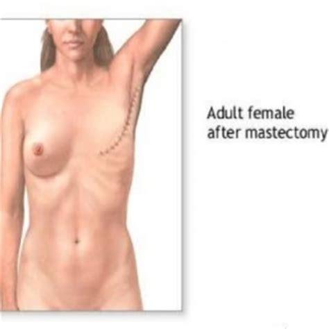 breast reconstruction following mastectomy mastectomy types of mastectomy surgery