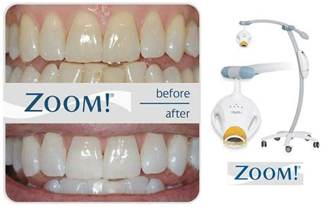 philips zoom tooth whitening jd dental care whiter