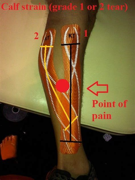 freehand calf muscle skin tear 29 best images about therapy on pinterest scapula it