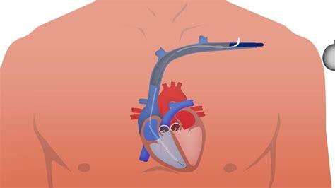 chambre implantable proc 233 dure d implantation d un dai d 233 fibrillateur