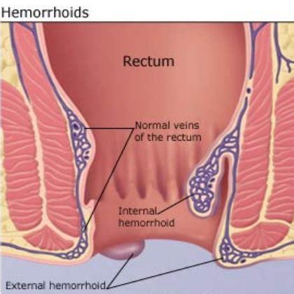 hemroids external best and effective ways to treat external hemorrhoids