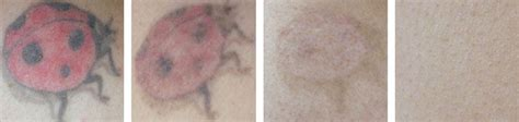 complete tattoo removal before and after photos laser removal premium