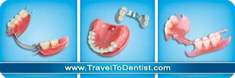 tipi di protesi dentarie mobili la protesi dentale cos 232 i tipi di protesi dentarie