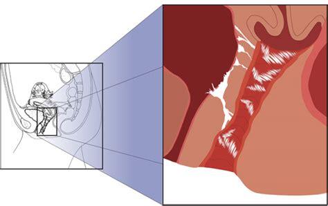 sore vagina after c section dyspareunia pain painful intercourse
