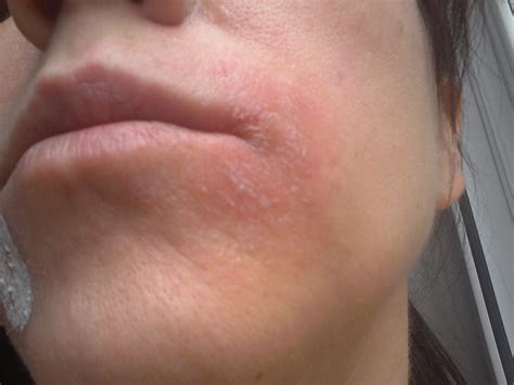 remedies for dry skin around mouth makeup and beauty a facialist s guide to managing facial eczema elizabeth