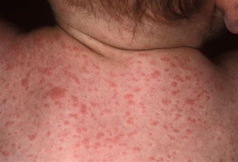 Photo of Roseola Infantum Skin Rash on Baby   Eosinophilic ... Roseola Infantum