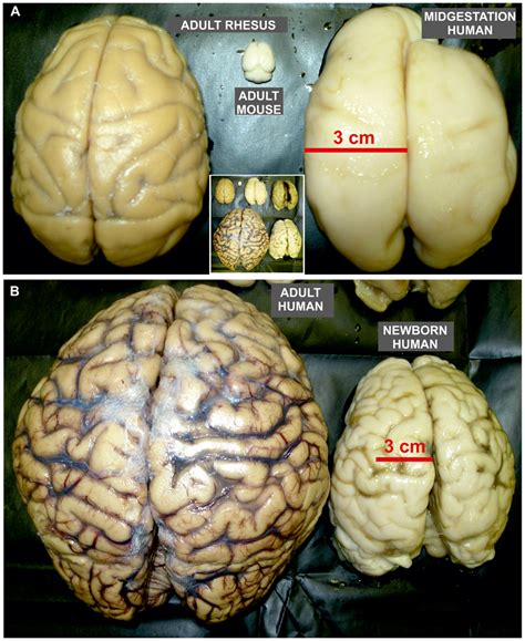 size of brain file size proportion of rodent and non human primate brain as well as