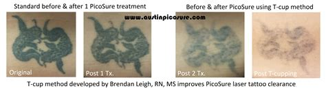 tattoo removal journey introducing the t cup method adjunct therapy for picosure