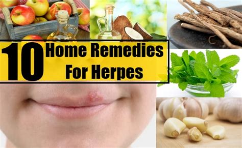 10 home remedies for herpes diy health remedy