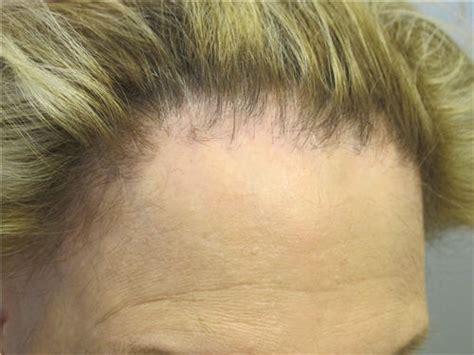 frontal fibrosing alopecia treatment scarring cicatricial alopecia bernstein medical