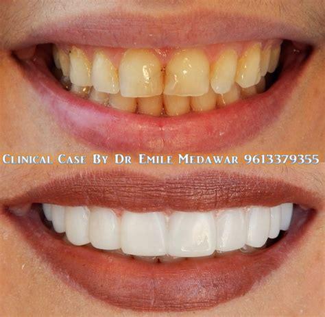 Veneer Komposit composite veneers smile