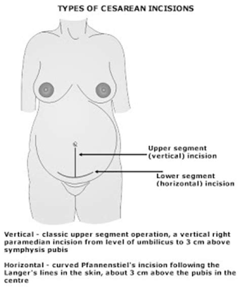 what is a low transverse cesarean section the well rounded mama cesarean incisions in women of size