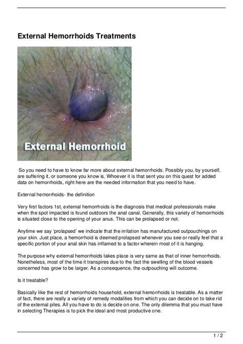Hemroids External | external hemorrhoids newhairstylesformen2014 com