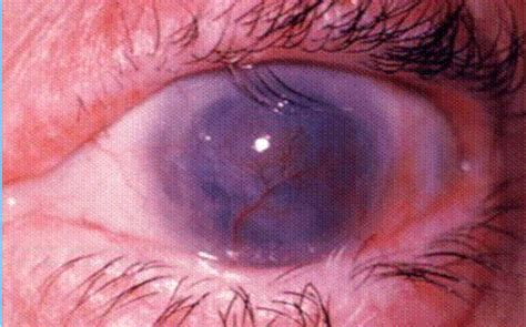 Blinding Trachoma trachoma causes symptoms treatment pictures