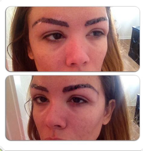 eyebrows tattoo removal this is my 1st session of laser removal trying to