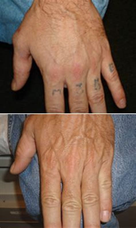 blank slate tattoo removal removal before and after on