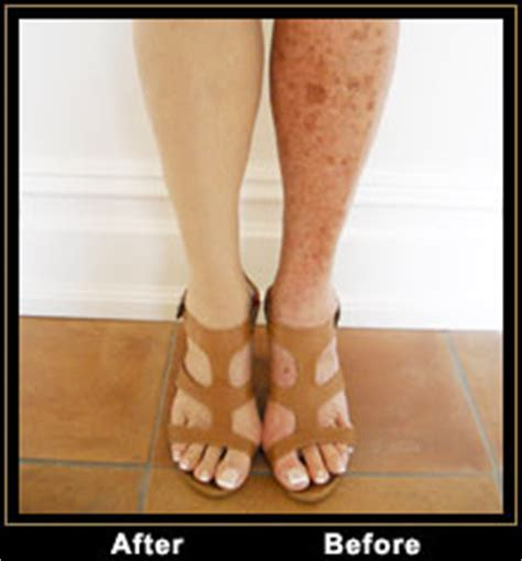 tattoo cover up varicose veins cover any spots marks tattoos etc health and beauty