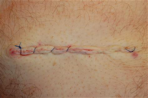 horizontal running mattress suture modified with