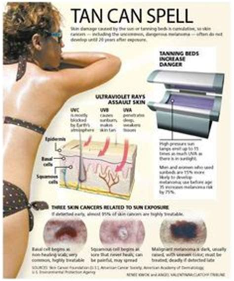 tanning bed facts medical illustration of the types of skin cancer melanoma basal cell carcinoma
