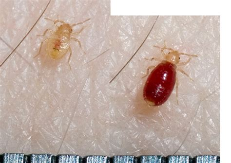 picture of a bed bug anuvrat info