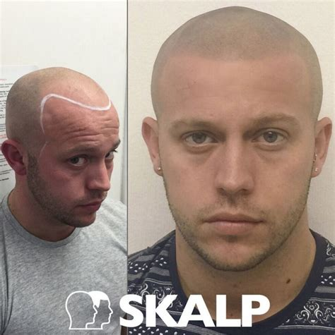 male pattern baldness tattoo 101 best images about skalp post hairloss treatment photos