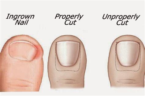 Toe Nail Care by How Do You Get An Ingrown Toenail