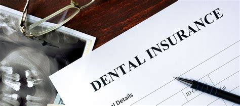 in house dental insurance in house dental insurance lakeway cosmetic dentistry