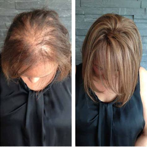 hair weaves for thin front hair thinning hair solutions garnish hair studio extension