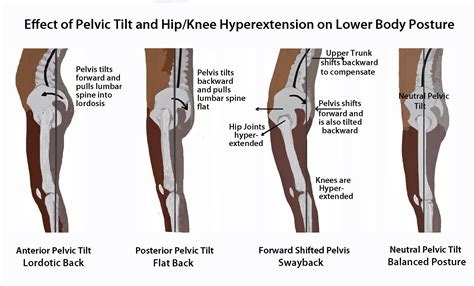 2842214420 yoga anatomie les postures effect of pelvic tilt and hip knee hyperextension on lower