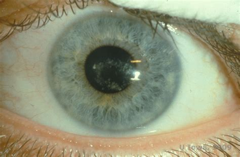 corneal dystrophy epithelial stromal and stromal corneal dystrophies
