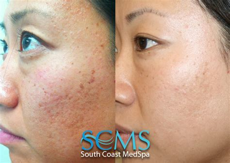 remove acne scars light and dark skin laser acne scar removal asian skin
