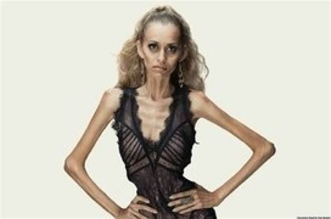 On The Anorexic Model Problem She Says by Anti Anorexia Ads Stun With Tagline You Are Not A Sketch