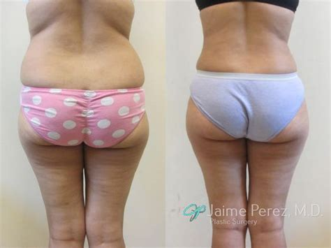 liposuction during c section 6 weeks after tummy tuck surgery abdominoplasty tummy