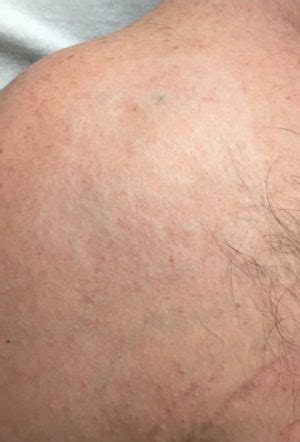 serenity tattoo removal picosure removal before and after serenity