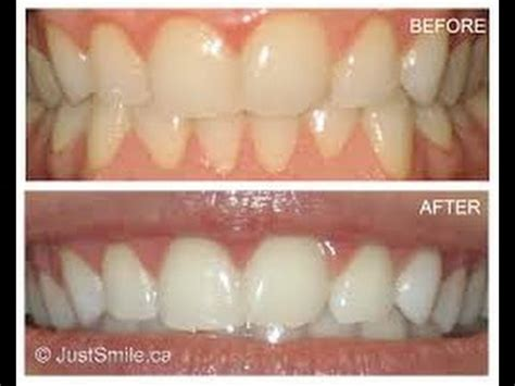 dental teeth whitening strips review stella white strips