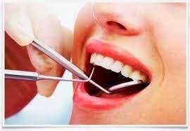 Membersihkan Karang Gigi Yang Sudah Parah tips alami membersihkan karang gigi