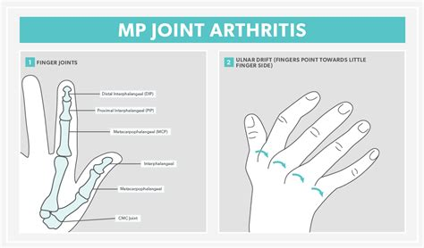 ti hurt mp diagram of the thumb joints diagram of lower spine