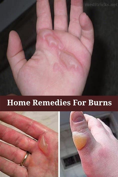 home remedies for chemical burns grandmas home remedies